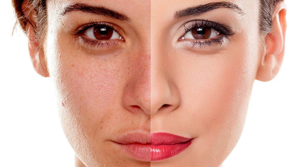 Bạn nên sử dụng kem chống nắng hằng ngày để bảo vệ làn da hiệu quả nhất