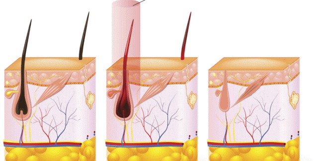 Công nghệ ánh sáng IPL tác động sâu vào nang lông