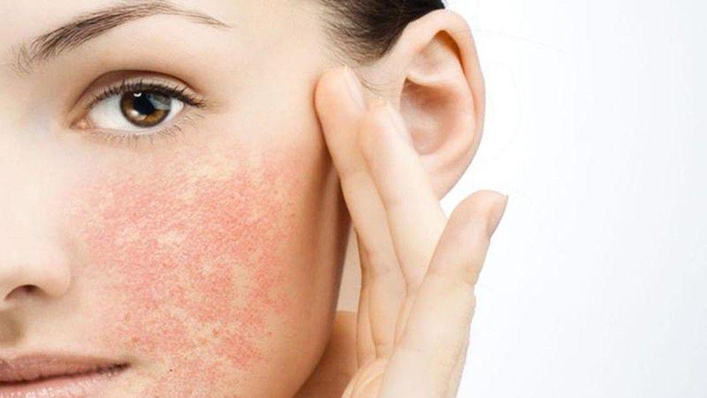 Da mụn, nhờn không sử dụng kem chống nắng để chăm sóc da mặt vì sẽ dễ tạo ra kích ứng và tổn thương da