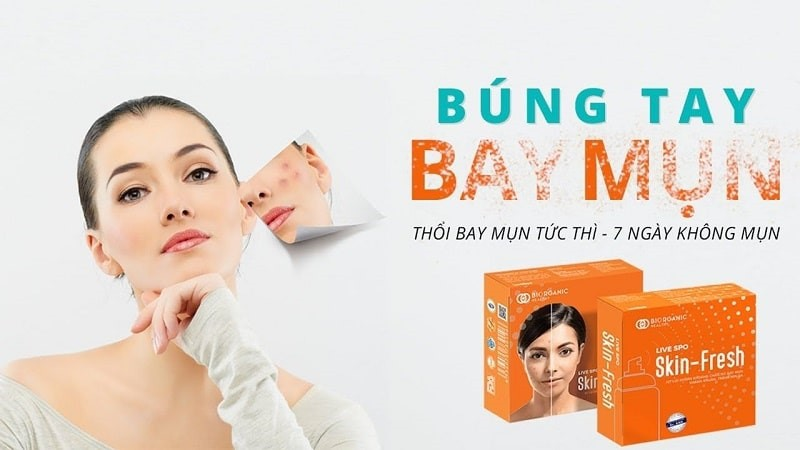 Skin Fresh là gì? Skin Fresh có thực hiệu quả như lời đồn? Đánh giá xịt trị mụn Skin Fresh có tốt không?