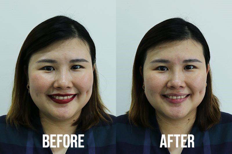 Kristen Juliet trước và sau khi sử dụng Bioderma Hydrabio H2O Micellar Water với một miếng bông cho toàn bộ khuôn mặt (trừ vùng mắt và môi)