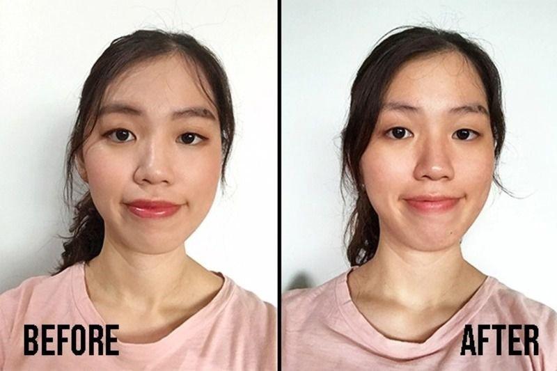 Vivian trước và sau khi sử dụng Bioderma Sébium H2O Micellar Water với một miếng bông cho toàn bộ khuôn mặt (trừ vùng mắt và môi)